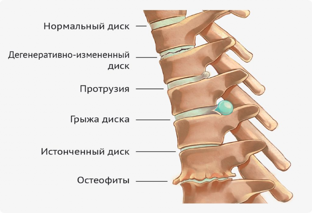 Дорзальная протрузия - причины, симптомы, диагностика и лечение