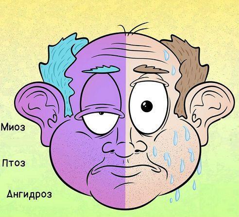 Анизокория (зрачки разного размера): причины, симптомы и лечение у взрослого