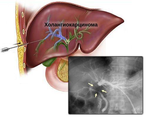 Холангиокарцинома - симптомы болезни, профилактика и лечение холангиокарциномы, причины заболевания и его диагностика на eurolab