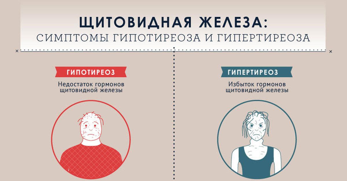 Гипертиреоз, симптомы и лечение у женщин