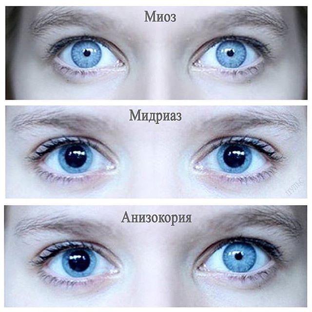 Изменения на глазном дне (миоз) - библиотека доктора