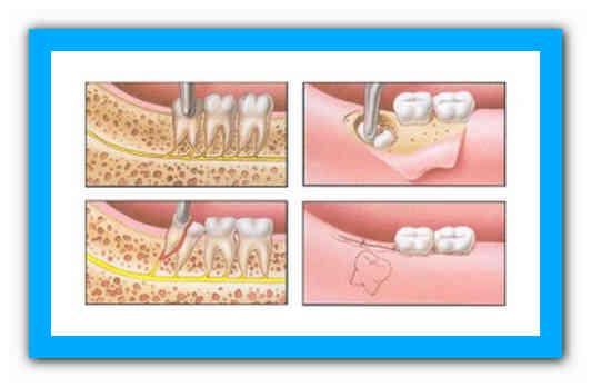 Турунда после удаления зуба: когда ее необходимо ставить?