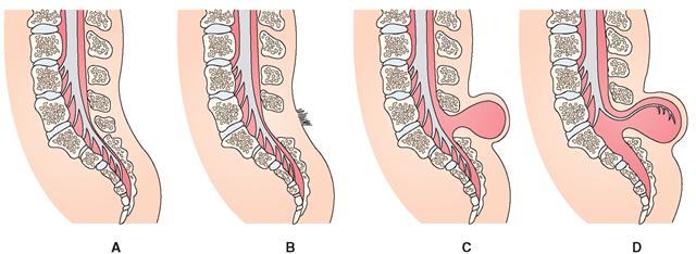 Спина бифида (spina bifida): что это такое у детей и плода, фото, лечение менингоцеле s1 оккульта у новорожденного, возможные последствия | parnas42.ru