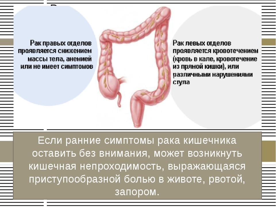 Лечение полипов, их виды и причины возникновения