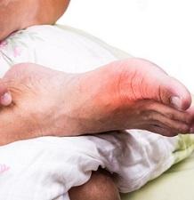 Что такое подагра у мужчин — суставы