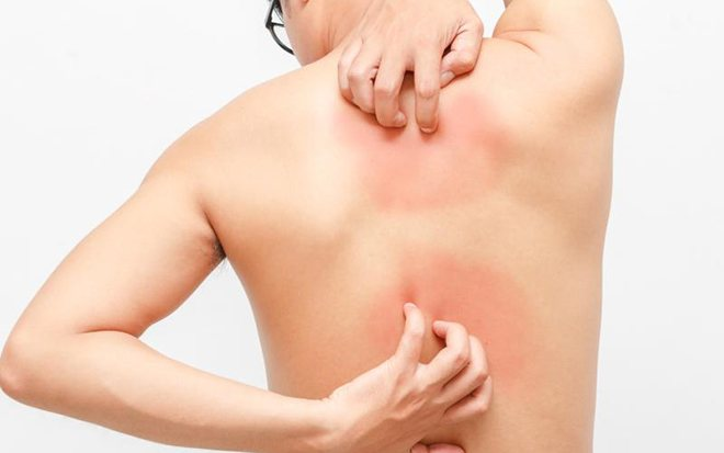 Зуд по всему телу с сыпью и без высыпаний на коже, постоянный и переодический - причины и лечение