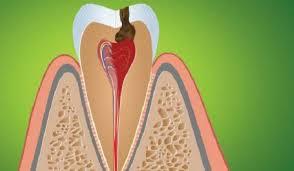 Лечение пульпита зуба: как избавиться от ужасной боли | новости