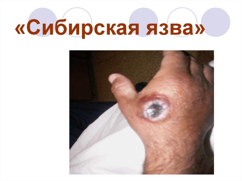 Сибирская язва — возбудитель, симптомы у человека, лечение и препараты