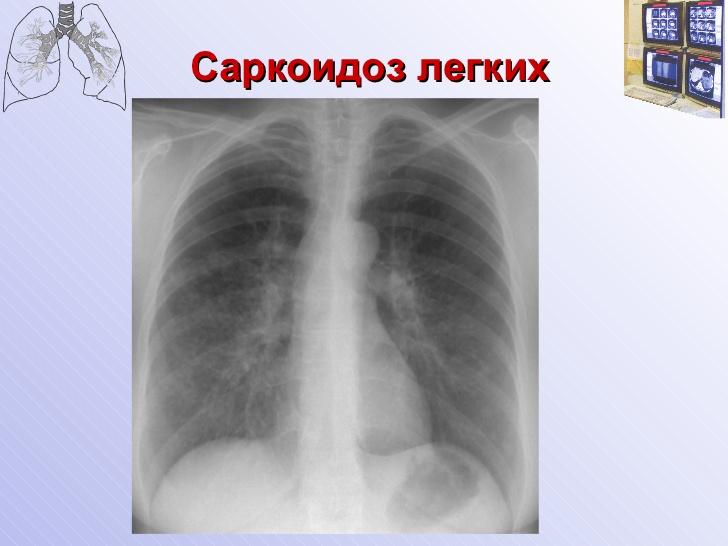 Лимфаденопатия шейных лимфоузлов: лечение, причины, симптомы и виды