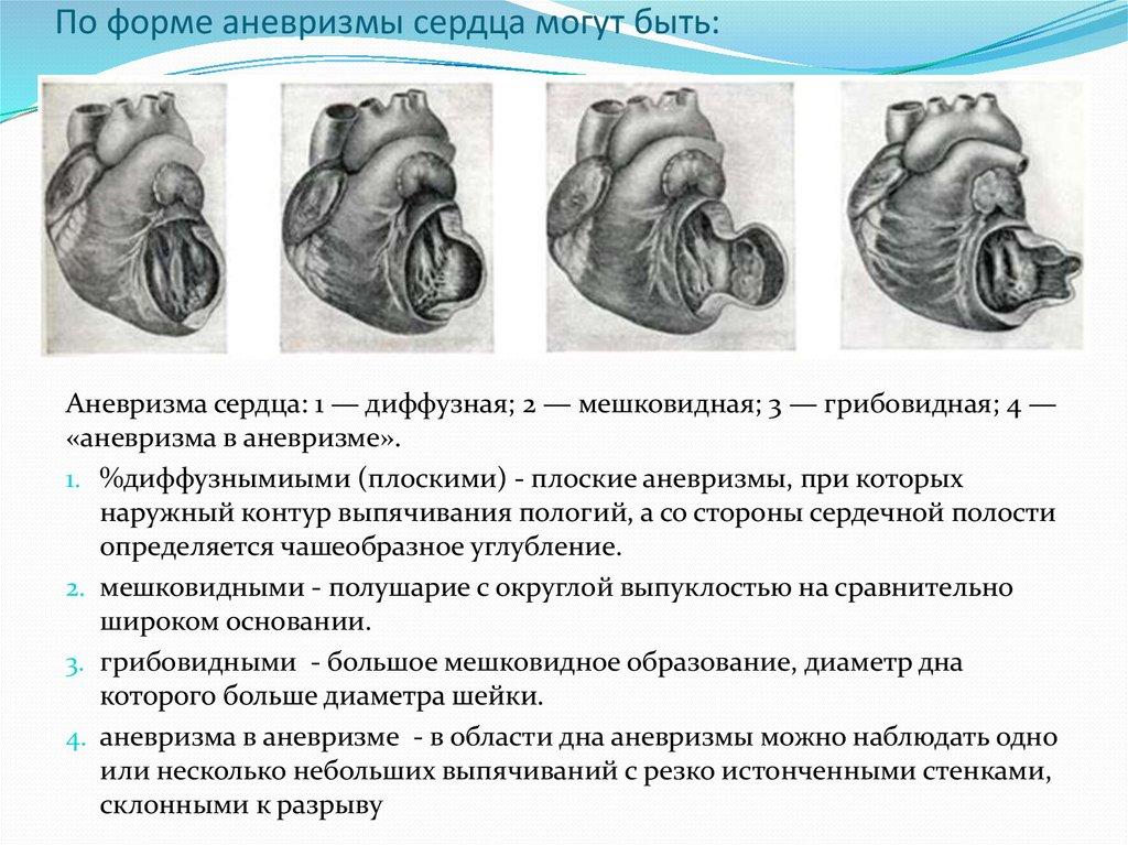 Аневризма сердца (желудочков, перегородок, предсердий, синуса вальсальвы): симптомы и признаки, причины врожденной и приобретенной, лечение, сколько живут
