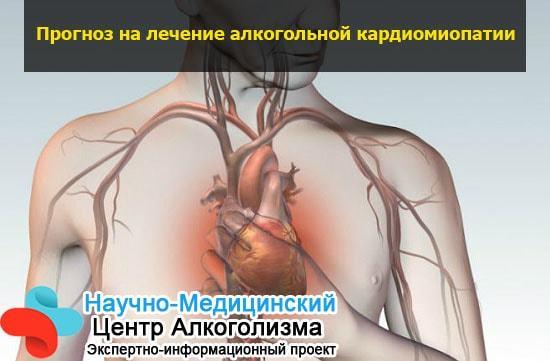 Алкогольная кардиомиопатия что это такое у взрослых