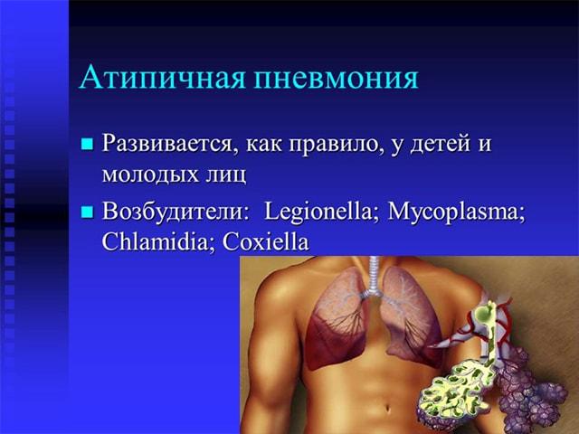Атипичная пневмония: симптомы, причины, лечение у детей
