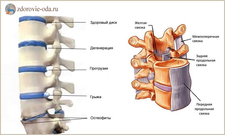 Протрузия межпозвоночного диска. протрузия шейного, поясничного, крестцового отдела позвоночника. симптомы, лечение, операция –  отделение вертебрологии цкб ран