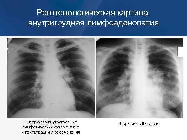 Парааортальная лимфаденопатия: что это такое, возможные причины, типичные симптомы