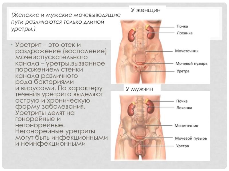 Уретрит у мужчин и женщин. причины, симптомы, признаки, диагностика и лечение уретритов. виды уретрита: острый, хронический, неспецифический, специфические виды уретрита . бактериальный, кандидозный, трихомонадный уретрит :: polismed.com