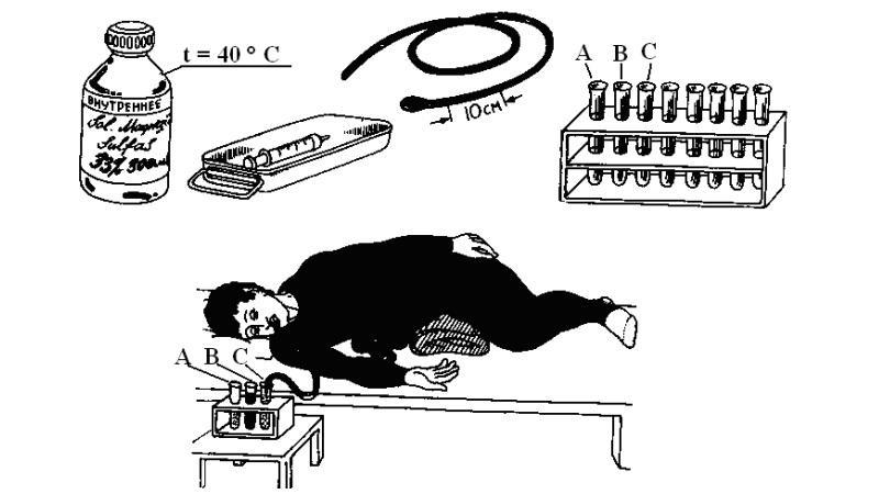 Зондирование желчного пузыря — что это такое, особенности, подготовка