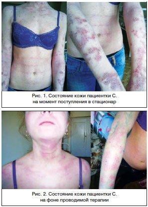 Мацерация кожи - причины, симптомы, последствия, лечение, фото