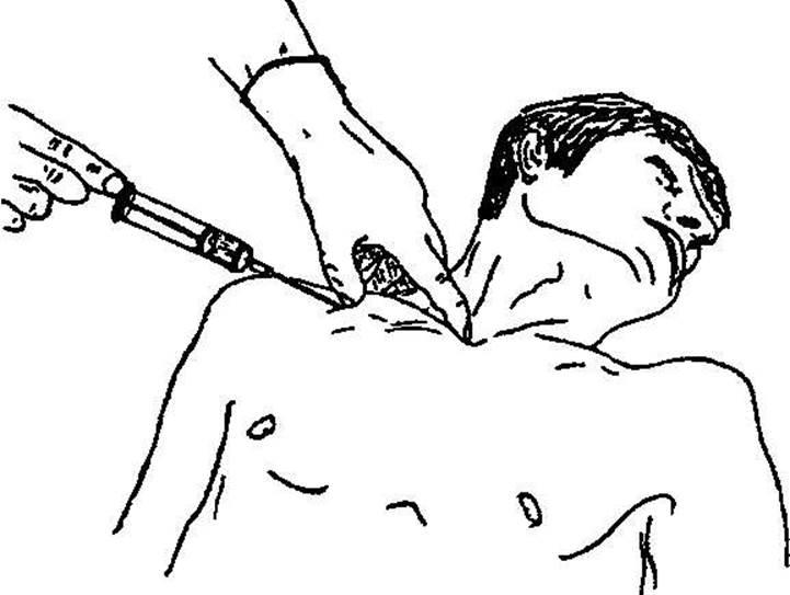 Методы проведения катетеризации мочевого пузыря