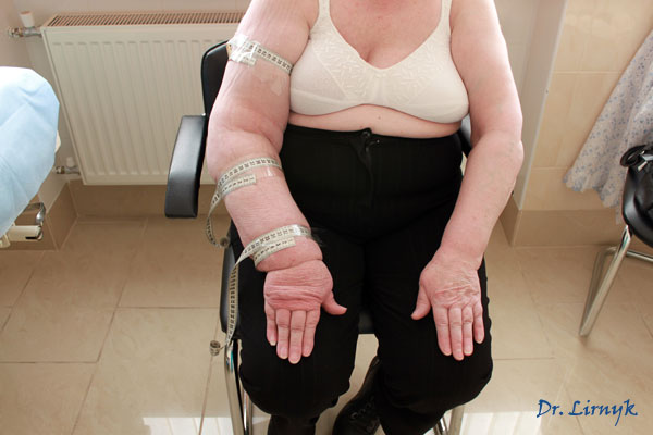 Лимфостаз нижних конечностей, лечение в домашних условиях