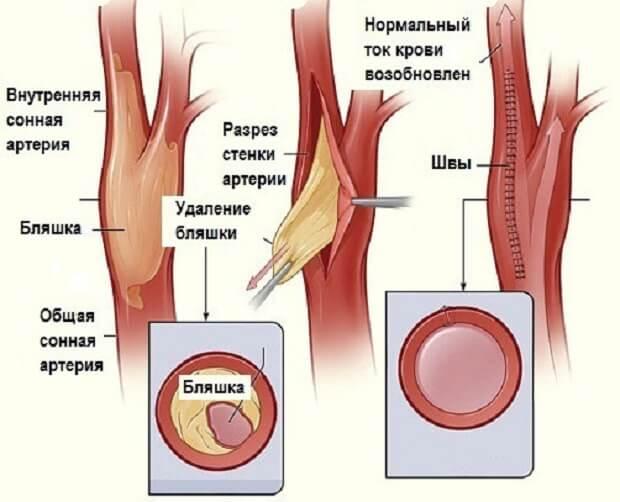 Дуплексное сканирование брахиоцефальных артерий — что это такое и чем полезно уздс сосудов головы и шеи?