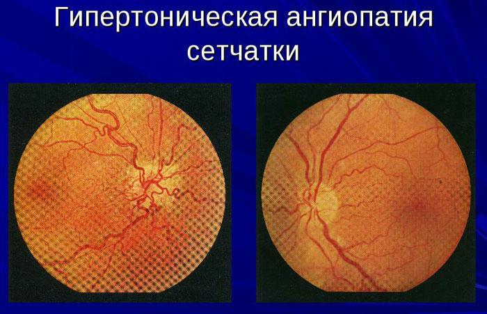 Гипертоническая ангиопатия: что это такое, по гипертоническому типу, лечение, признаки