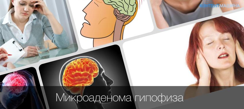 Аденома гипофиза головного мозга: что это такое, ее симптомы, причины, лечение, последствия