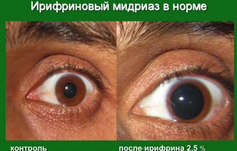 Мидриатики в офтальмологии - эффект, препараты