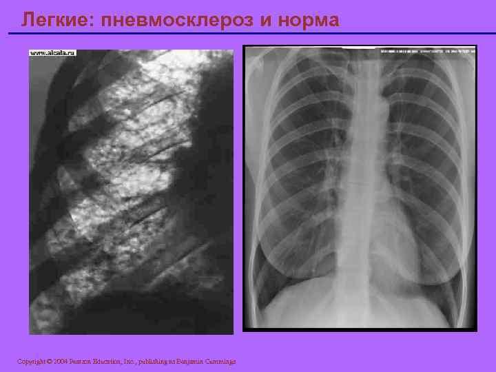 Диффузный пневмосклероз легких — что это такое и как лечить - пульманолог