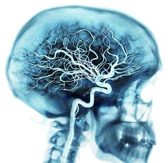 Цвб – цереброваскулярная болезнь: признаки, симптомы, лечение и последствия