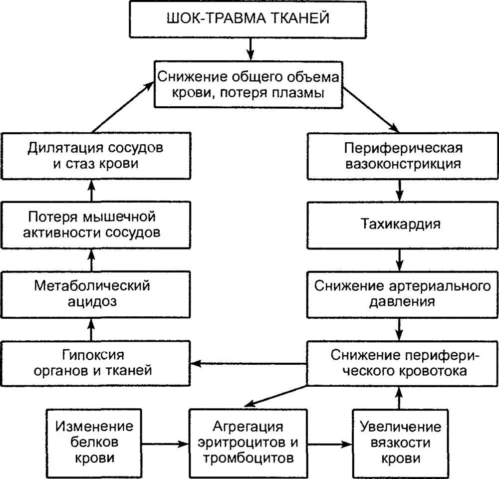 Классификация шока, определение понятия