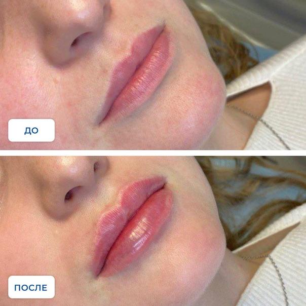 Контурная пластика губ: что такое, фото до и после, цена, вся правда и отзывы о коррекции кисетных морщин, формы и увеличении губ, противопоказания и последствия