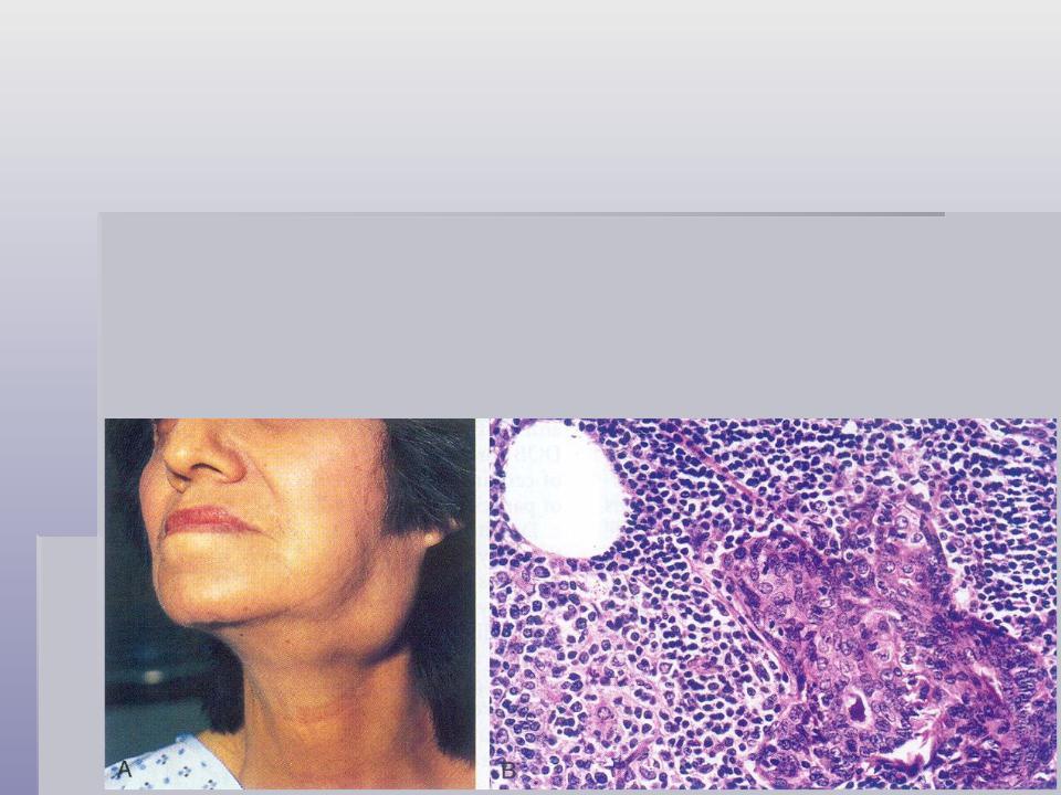 Синдром шегрена - что это такое, лечение, симптомы, диагностика