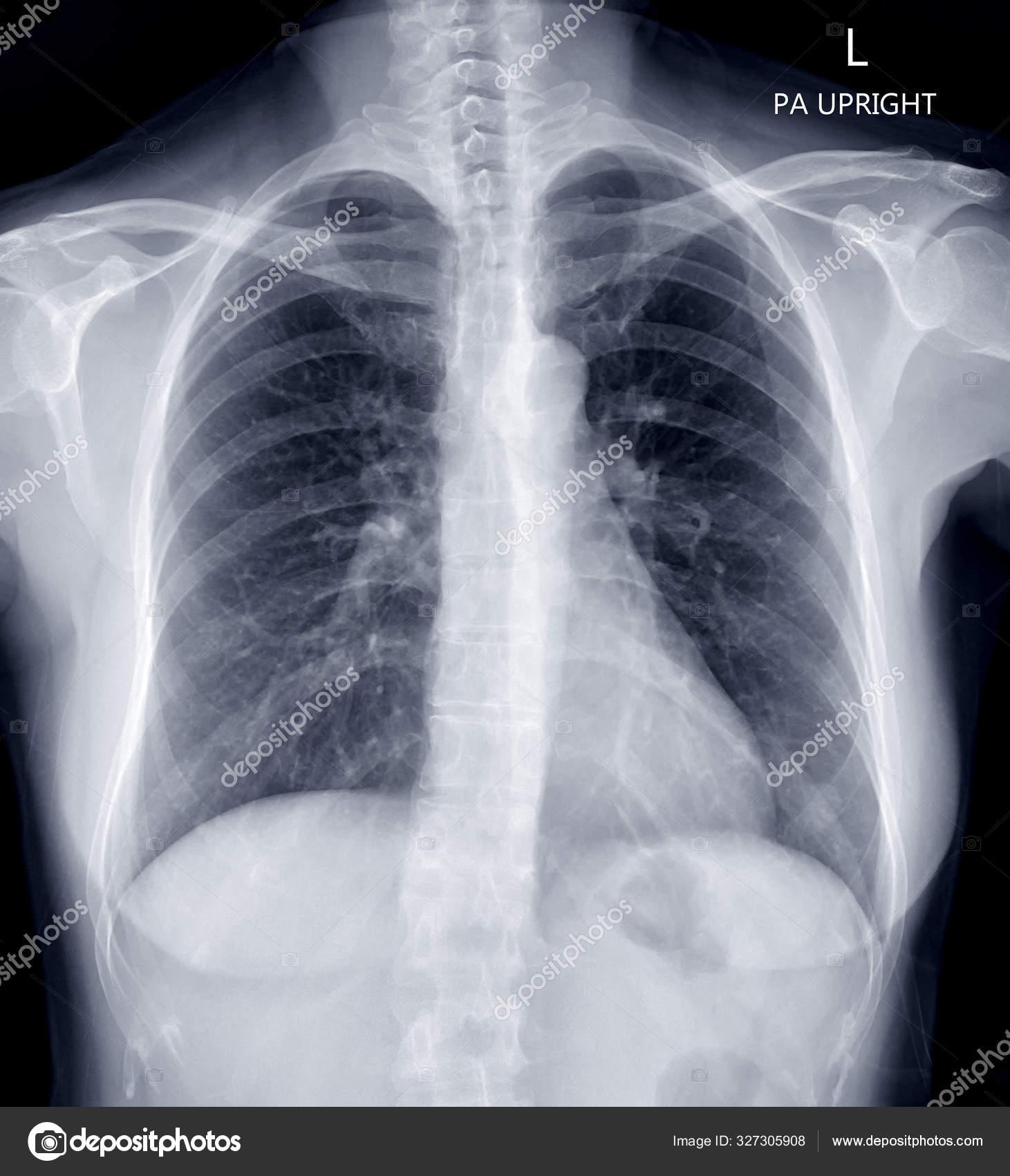 Ком в груди (грудине) посередине, при вдохе: причины