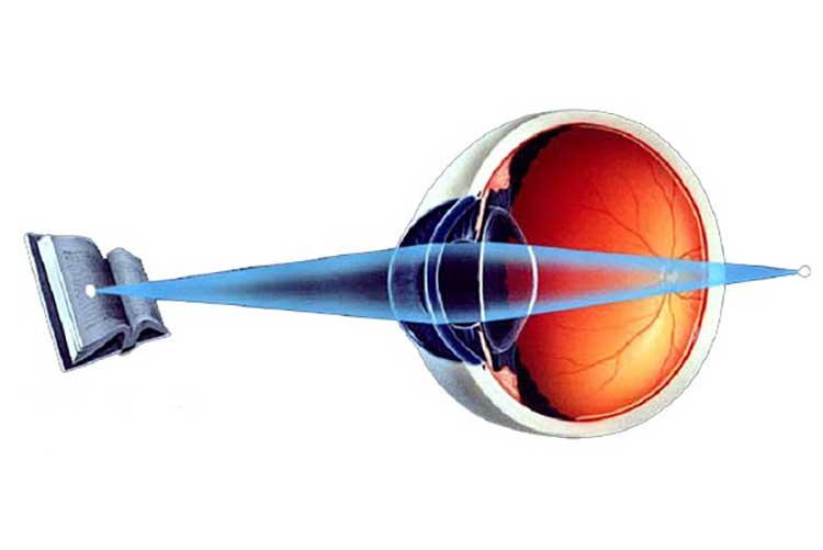 Пресбиопия глаз — что это такое?