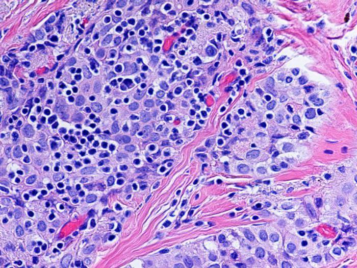 Иммуногистохимия: показания, особенности и интерпретация результатов