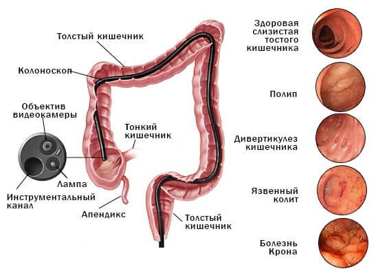 Что такое фиброколоноскопия кишечника?