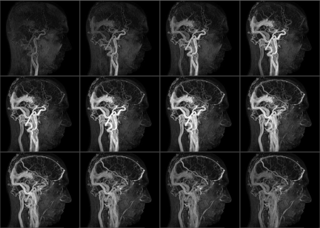 Ангиография. что такое ангиография, показания, какие болезни выявляет. ангиография головного мозга, сосудов нижних конечностей, коронарных сосудов :: polismed.com