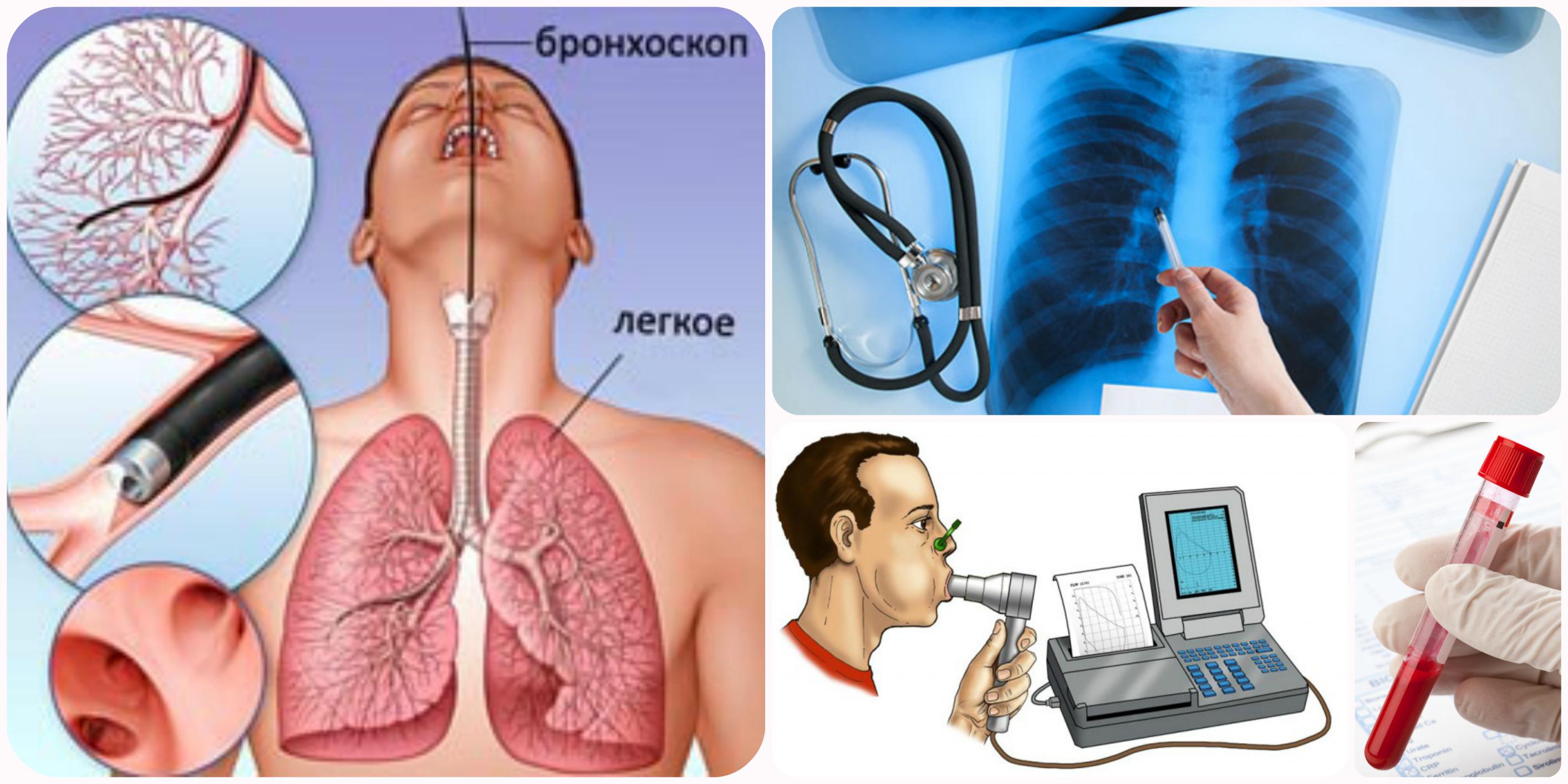 Пульмонолог - что за врач и какие болезни он лечит?