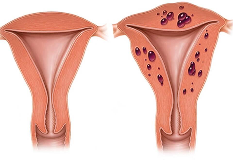 Выпадение шейки матки у женщин - что делать, как лечить