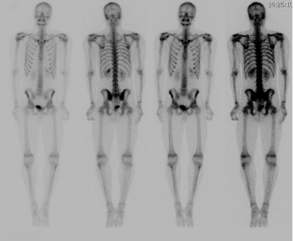 Сцинтиграфия костей скелета: подготовка к процедуре, расшифровки, осложнения