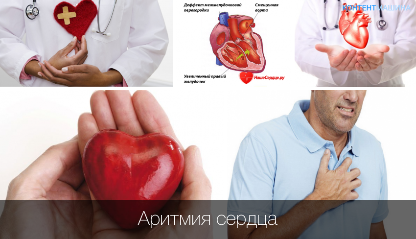 Лечение аритмии народными средствами