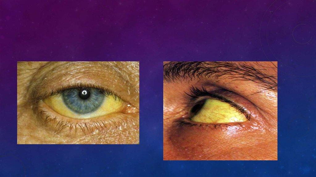 Склера глаз (белочная оболочка): структура, заболевания и лечение