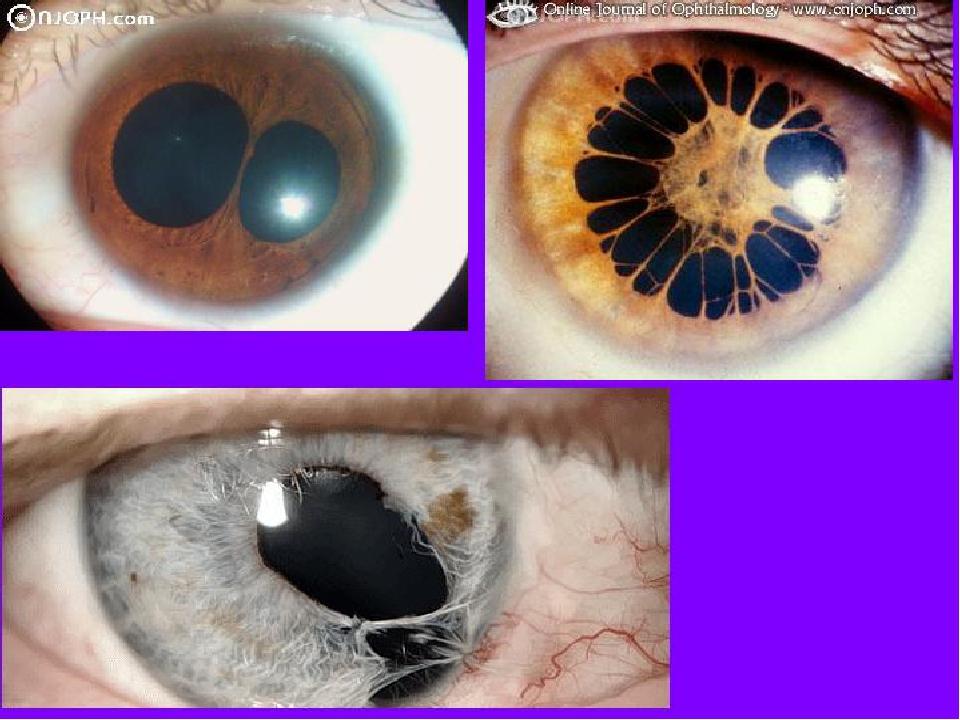 Один зрачок (один глаз) больше другого — причины у взрослых