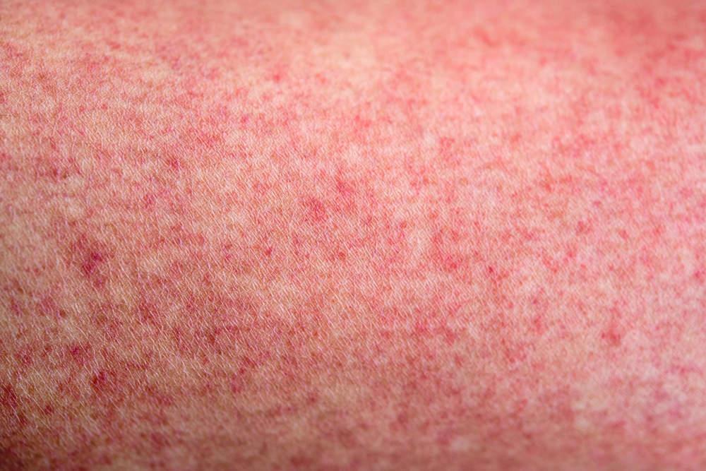 Сыпь на теле: причины высыпаний на коже у взрослого и ребенка