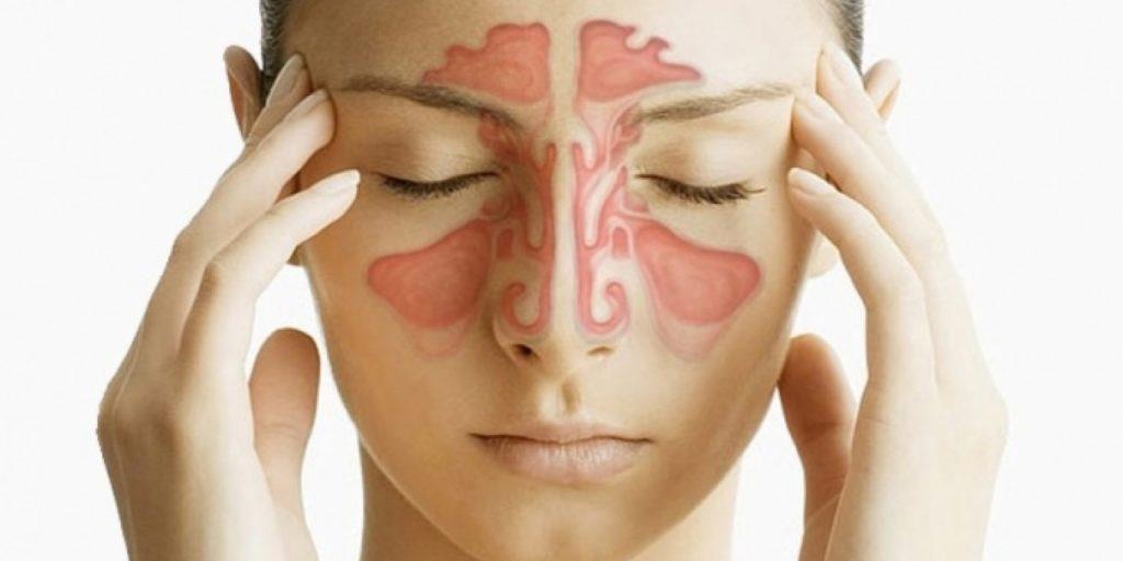 Этмоидит: что это такое, симптомы и лечение у взрослых и детей pulmono.ru этмоидит: что это такое, симптомы и лечение у взрослых и детей