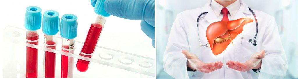 Тимоловая проба крови: что это, норма, повышена - причины