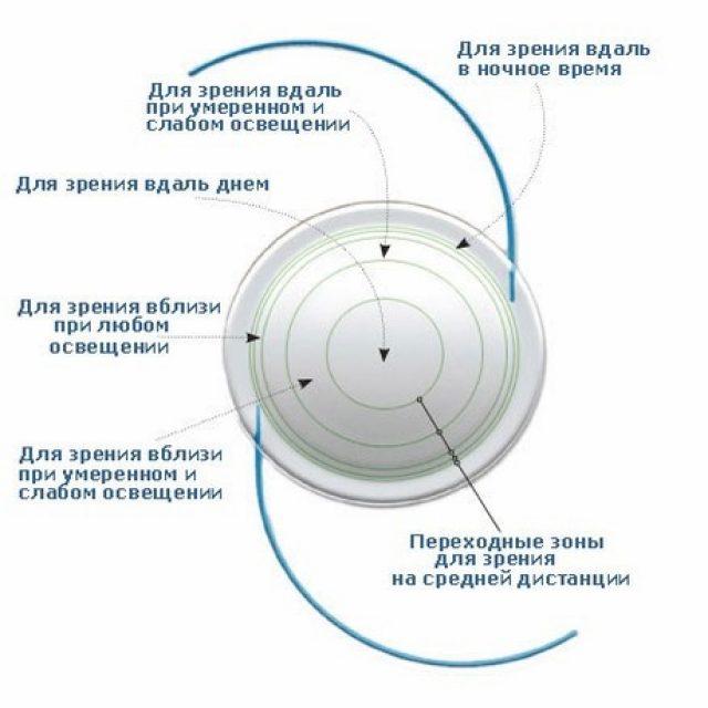 Когда применяется артифакия глаза, возможные осложнения
