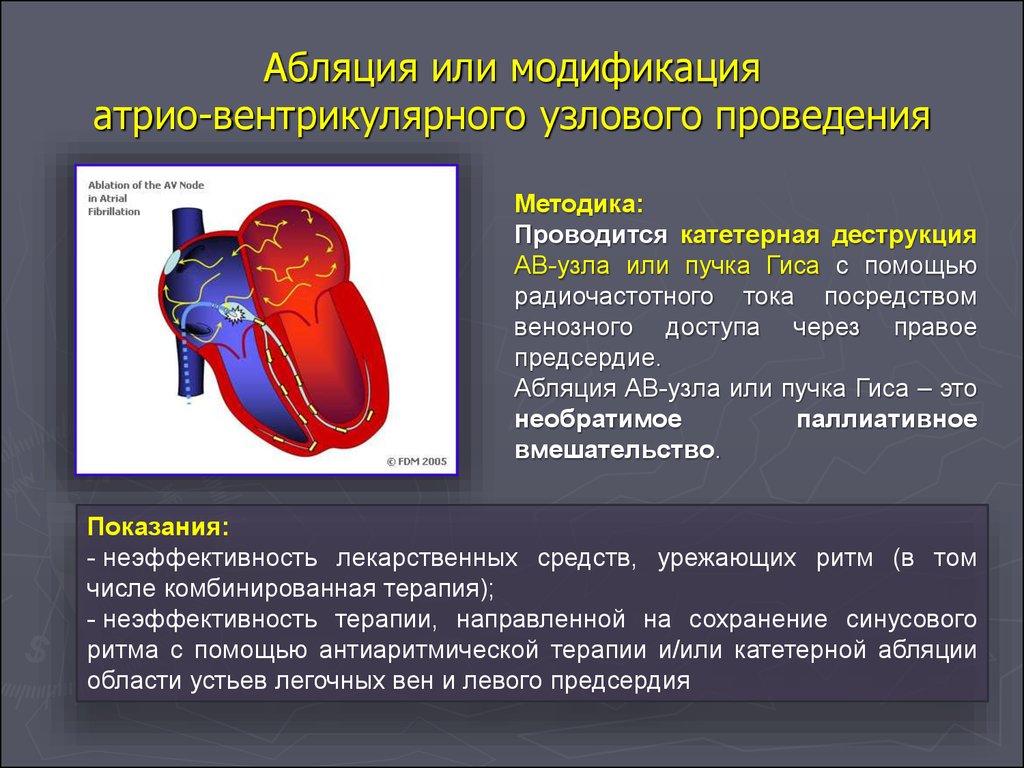 Радиочастотная абляция сердца при аритмии (рча): суть и преимущества процедуры