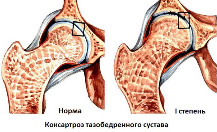 Коксартроз тазобедренного сустава что это такое и как его лечить?