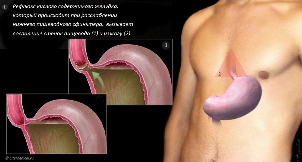Симптомы и лечение дуодено-гастрального рефлюкса (дгр) желудка